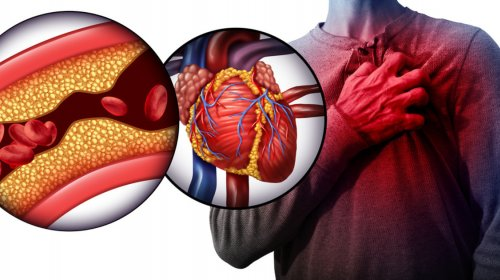 Der Weg zum Herzinfarkt